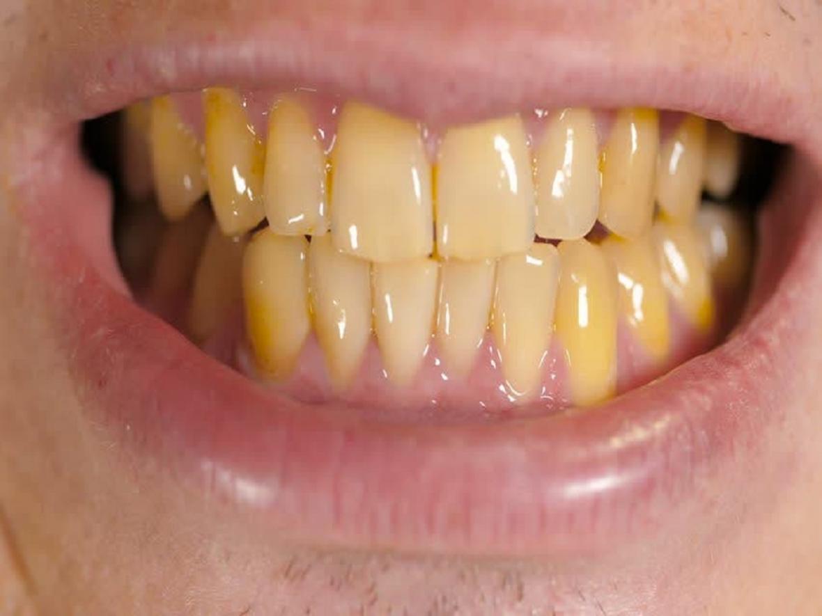مصرف کدام خوراکی ها منجر به زرد شدن دندان ها می گردد؟